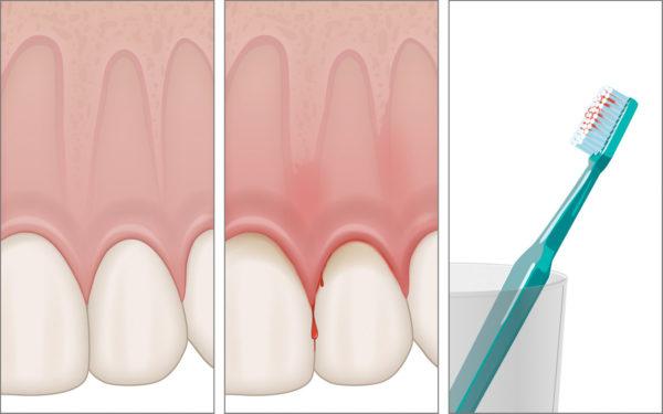 Zahnfleischbluten als Folge sowohl der Gingivitis als auch der Parodontitis