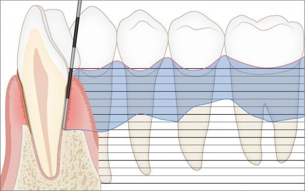 Parodontalstatus