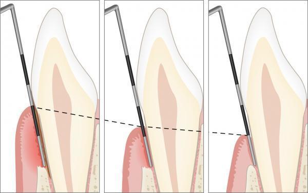 Nachkontrolle bei der Parodontitis