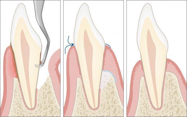 Parodontalchirurgie