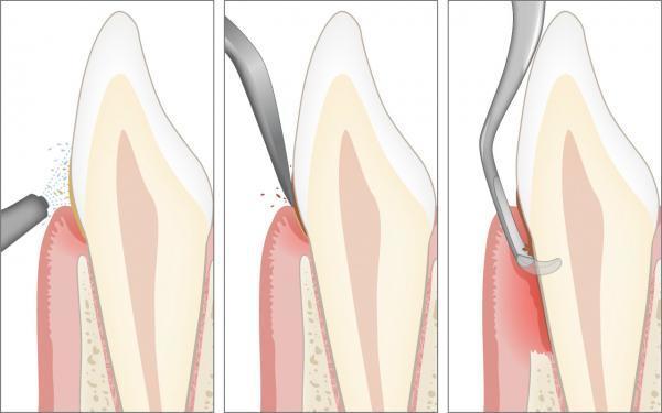 Therapie der Parodontitis