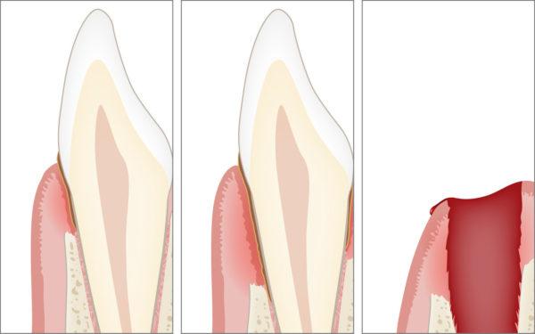 Knochenverlust und Zahnverlust als Folge sowohl der Gingivitis als auch der Parodontitis