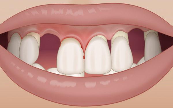 Schlechte Ästhetik als Folge der Parodontitis