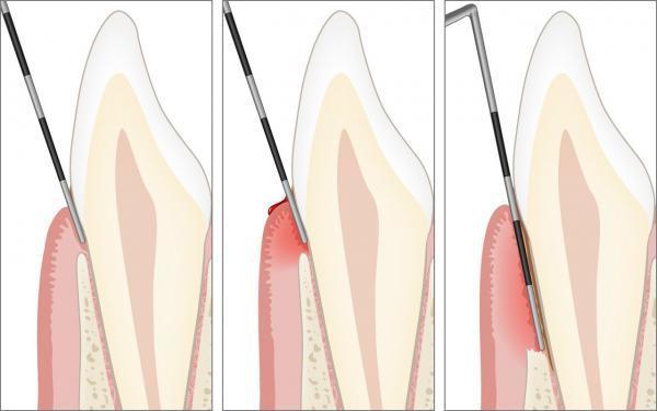 Klinische Untersuchung der Parodontitis