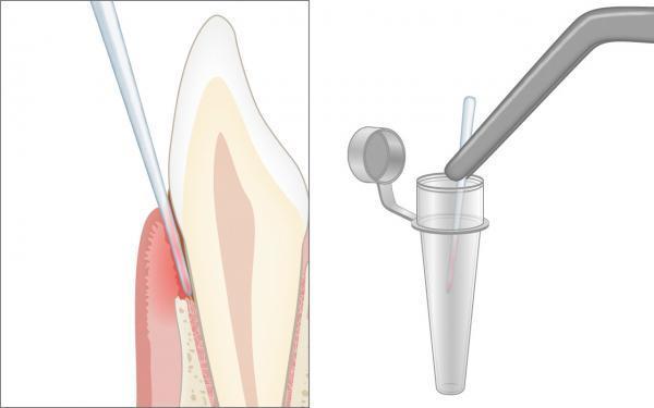 Mikrobiologischer Test bei der Untersuchung der Parodontitis