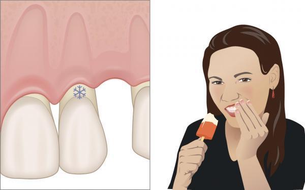 Nebenwirkungen der Parodontaltherapie