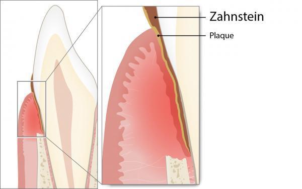 Zahnstein als Ursache der Parodontitis