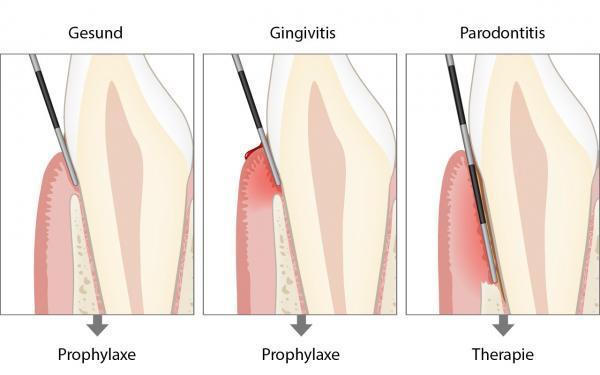 Parodontale Grunduntersuchung (PGU)